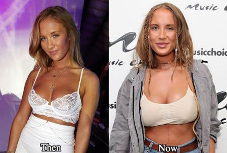 Niykee Heaton Before And After Surgery photo 28