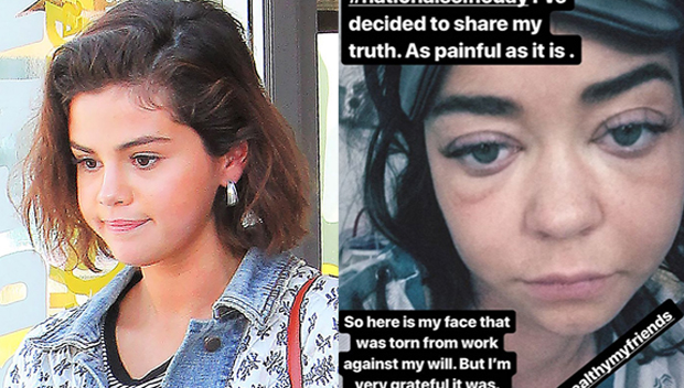 What Happened To Sarah Hylands Face photo 17